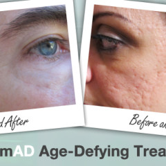 Nerium Formula For Younger Skin